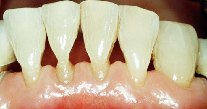 Шейка зуба, фото