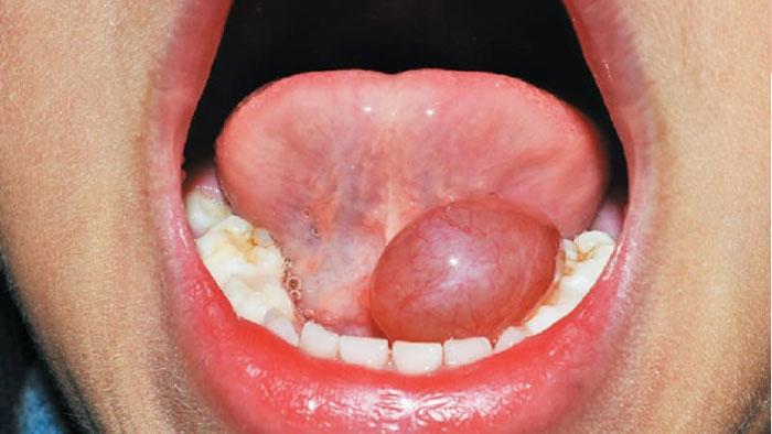 Воспаление под языком